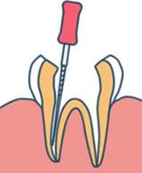 歯の根治療